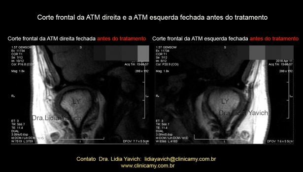 22 frontal rnm inicial 7