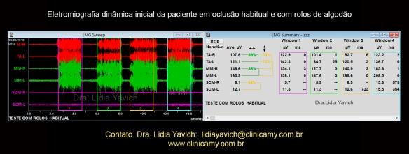24a eletromiografia dinãmica habitual rolos de algodão