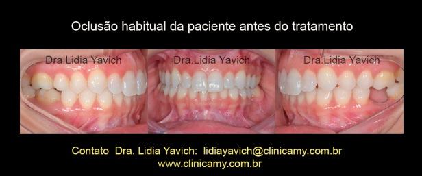 3 dentes inic