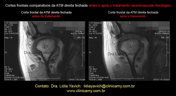 44 frontal rnm comparativas 8