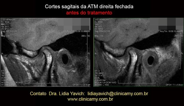 16 cortes sagitais da ATM DIREITA FECHADA ANTES DO TRAT