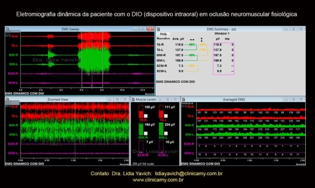 25 eletromiog dinamica com DIO