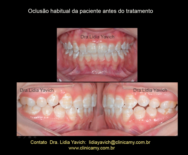 3 DENTES INIC PROT FRONTAL