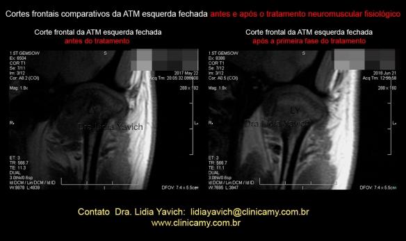 36 RNM Comparativas esquerda frontal