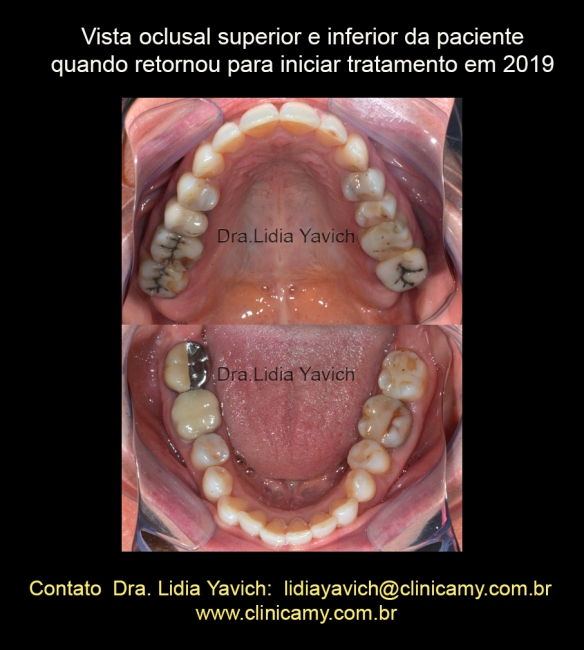 13 OCLUSAIS 2019