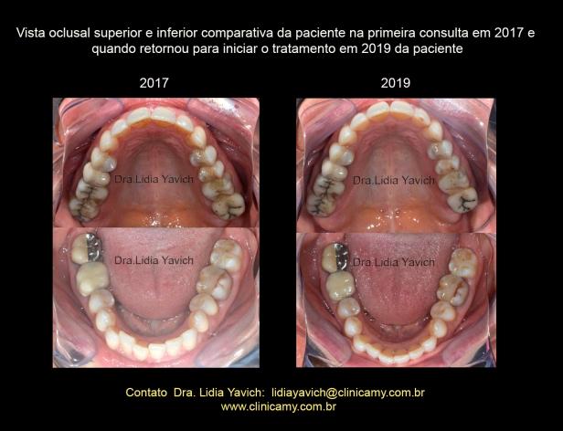 22 OCLUSAIS COMPARATIVAS 2017 2019