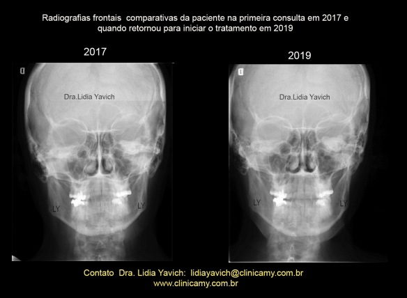 23 frontais COMPARATIVAS 2017 2019
