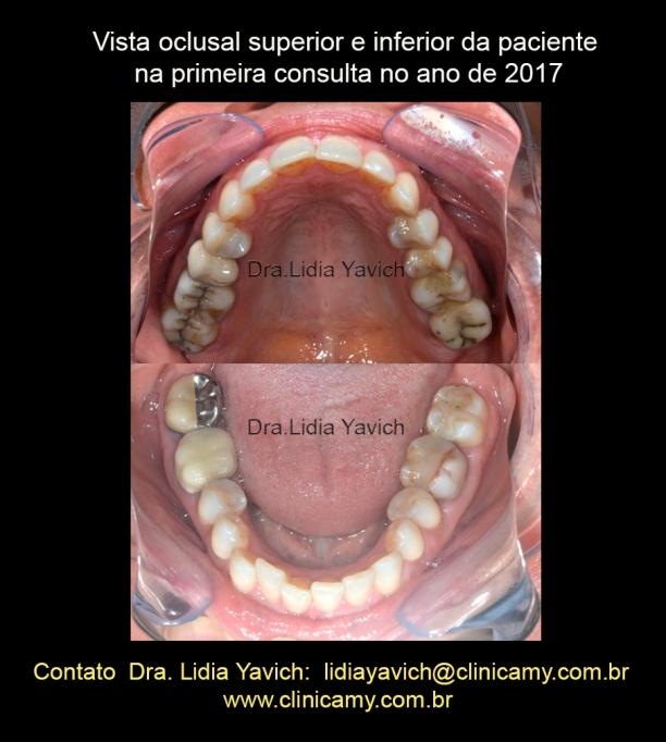 4 OCLUSAIS 2017