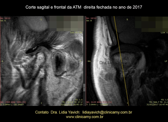 DIREITA SAGITAL E FRONTAL FECHADA 2017