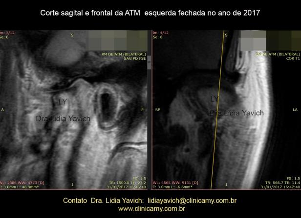 ESQUERDA 1 SAGITAL E FRONTAL FECHADA 2017